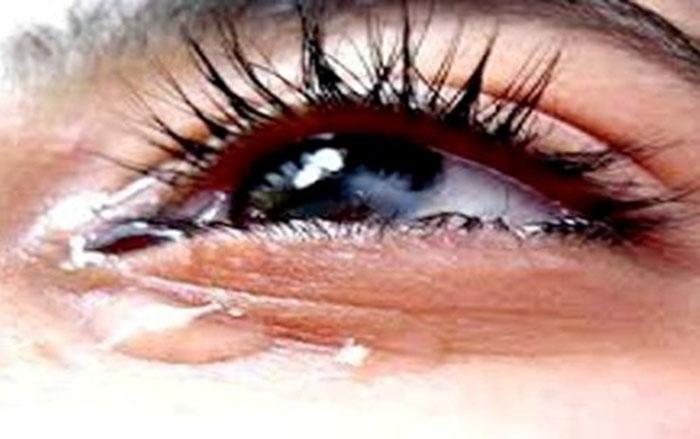 Ini Tiga Mata yang Tidak Akan Menangis di Hari Kiamat