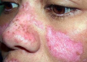 Mencegah Penyakit Lupus